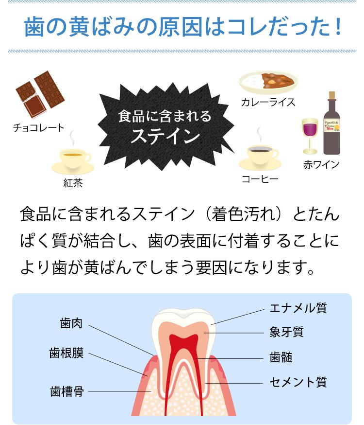 歯のきばみの原因 ステイン